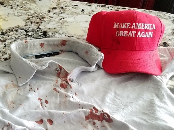 Long List of Attacks On Trump Supporters