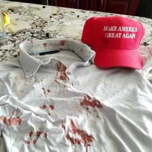 2016.06.02 – CA: While Leaving a San Jose Trump Rally an Angry Mob Attacked Gay Latino Trump Supporter & Log Cabin Republican